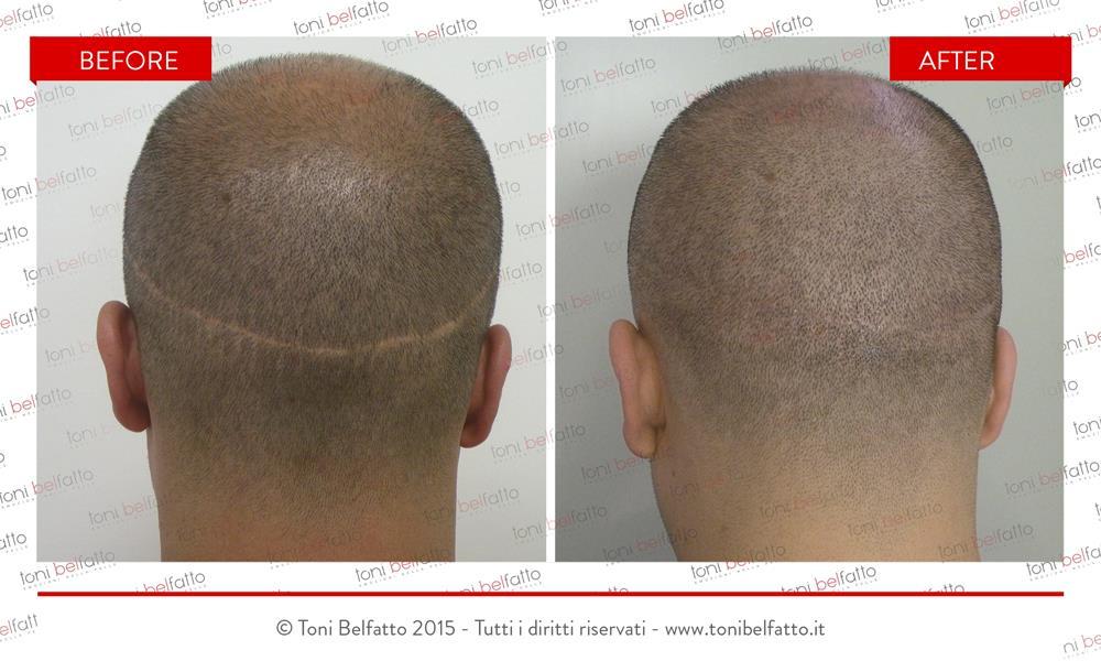 Cicatrice capelli tricopigmentazione
