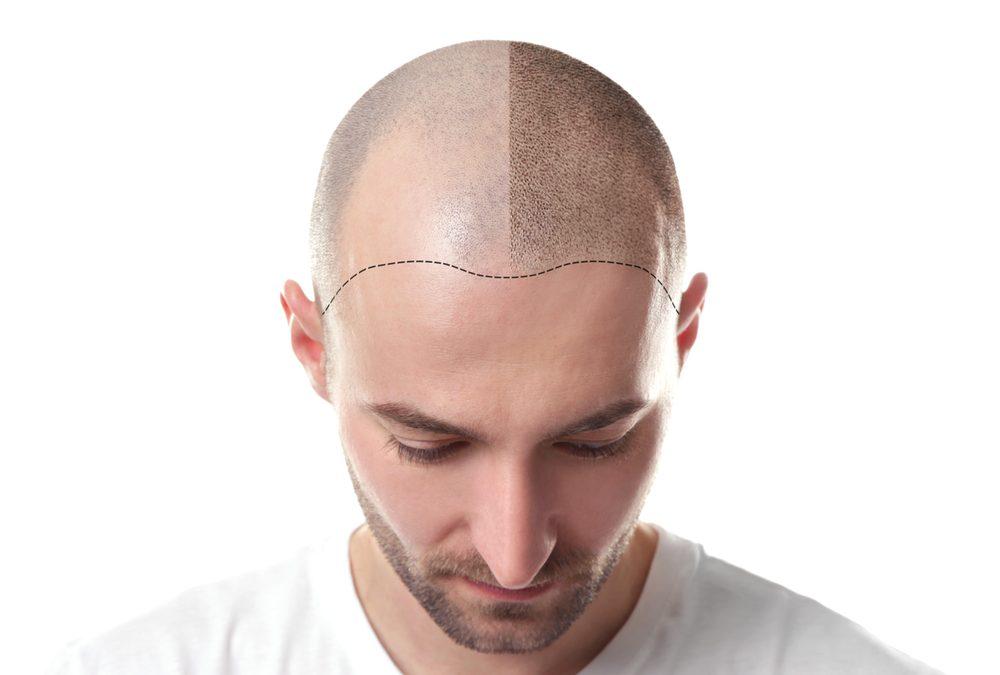 tricopigmentazione capelli