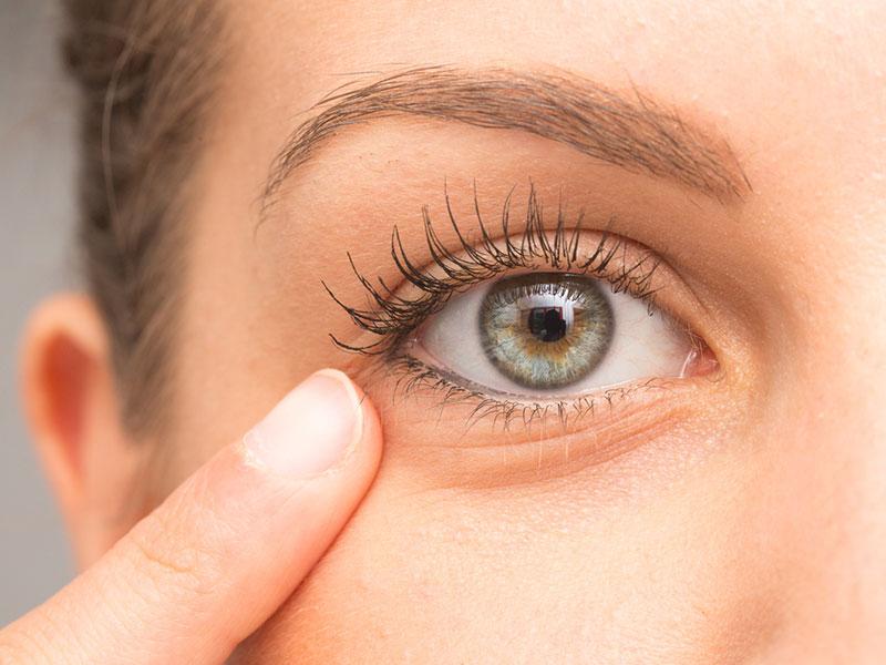 Coprire le occhiaie con trucco e rimedi naturali
