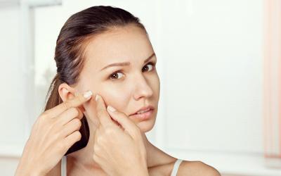 Imperfezioni della pelle: come curarle