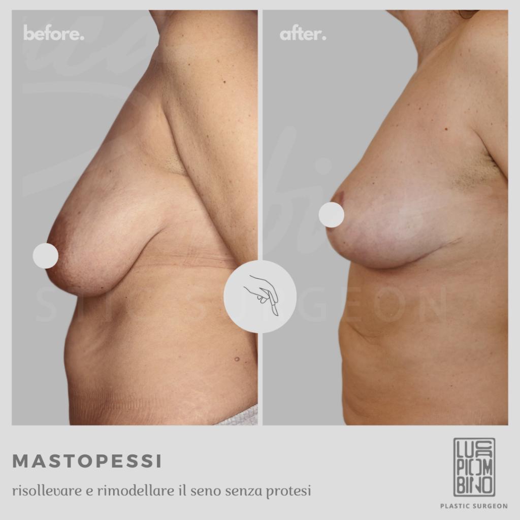 rimozione protesi seno
